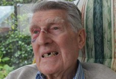 Express and Echo. Richard Hadley, 85, shows his injuries after being attacked by a church warden in Sidmouth.